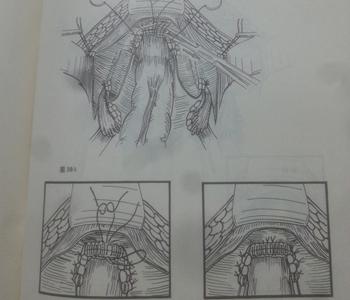 阑尾荷包式缝合图解